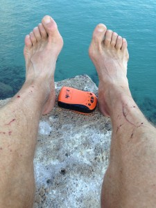 The Idiot's feet not only take him over 30 kilometers each day but frequently get cut, scraped and sore.